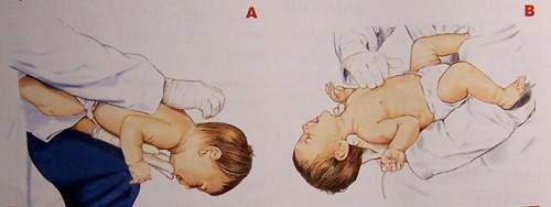 婴幼儿海姆立克急救法