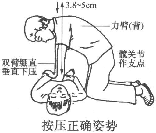 肺结构图片示意图