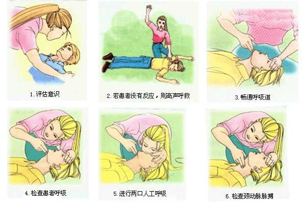 心肺复苏(CPR)急救操作步骤