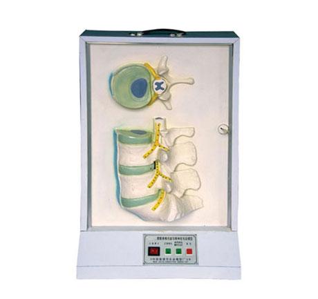 知能医学模型腰骶椎、椎间盘和脊神经电动模型